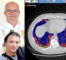 L'équipe du Pr Jacquier (La Timone), en collaboration avec Badih Ghattas (I2M), développe l'interface Smart Lungs